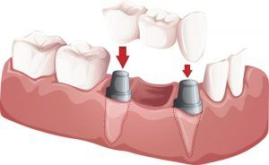 dental bridge restorative dentistry