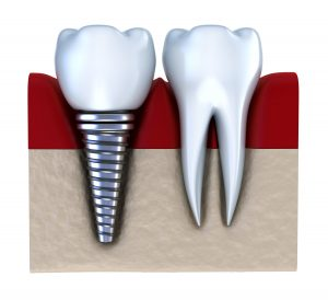 dental implants restorative dentistry