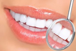 porcelain veneers cosmetic dentistry