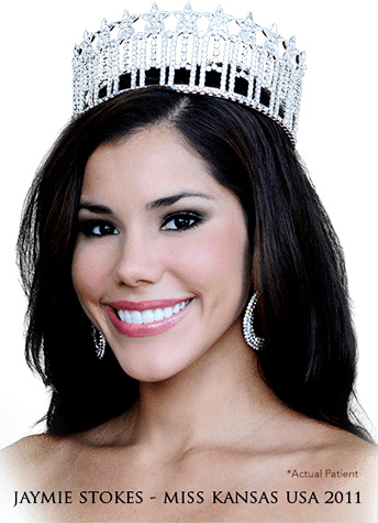 jaymie stokes miss kansas usa 2011 dentist patient