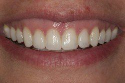 general dentistry results after