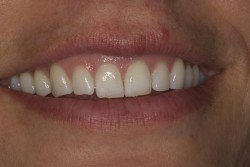 general dentistry results before