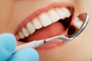 misconceptions about dental crowns