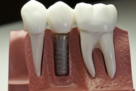 lifespan of dental implants